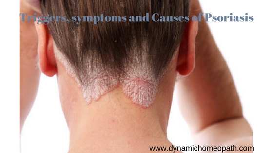 Trigger symptoms and Causes of Psoriasis
